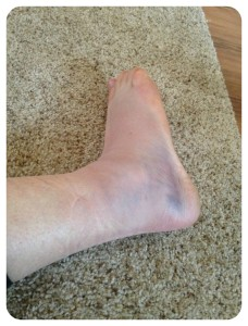 ankle injury, sprained ankle, beach volleyball, professional beach volleyball, rehabilitation, motivation, rehab